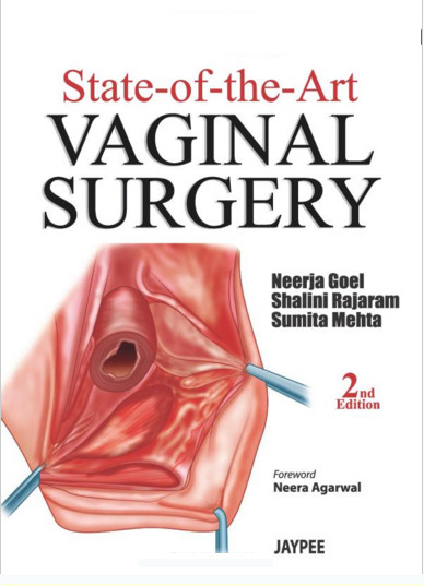 State-of-the-Art Vaginal Surgery 2  Edition