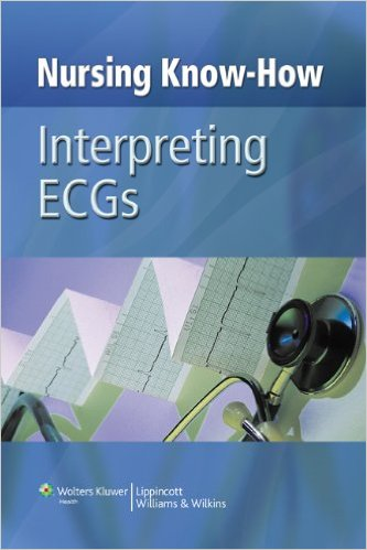 Nursing Know-How: Interpreting ECGs Kindle Edition