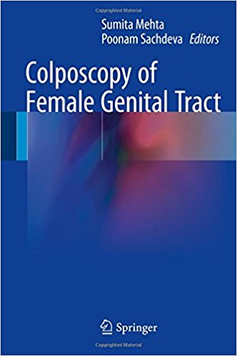 Colposcopy of Female Genital Tract 2017