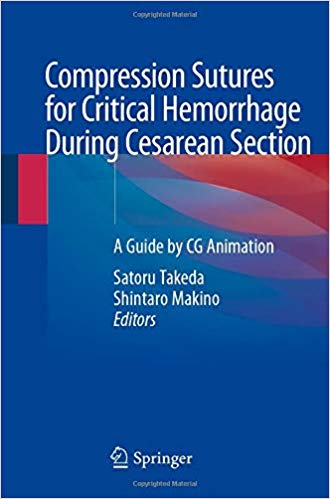 Compression Sutures for Critical Hemorrhage During Cesarean Section: A Guide by CG Animation 1st ed. 2020 Edition PDF
